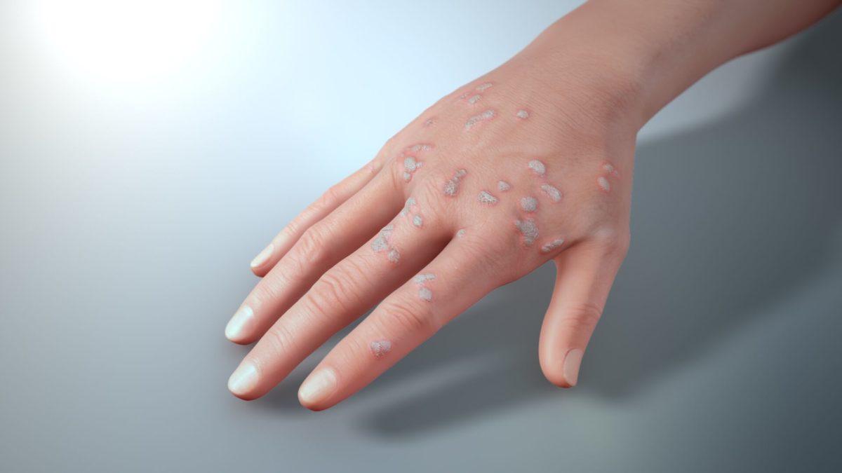 Common-hand-warts-1200x675.jpeg