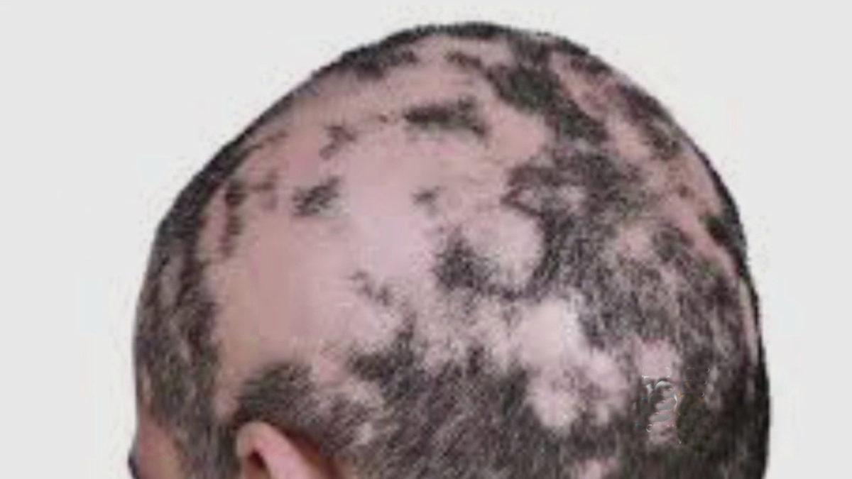 alopecia-1200x675.jpg