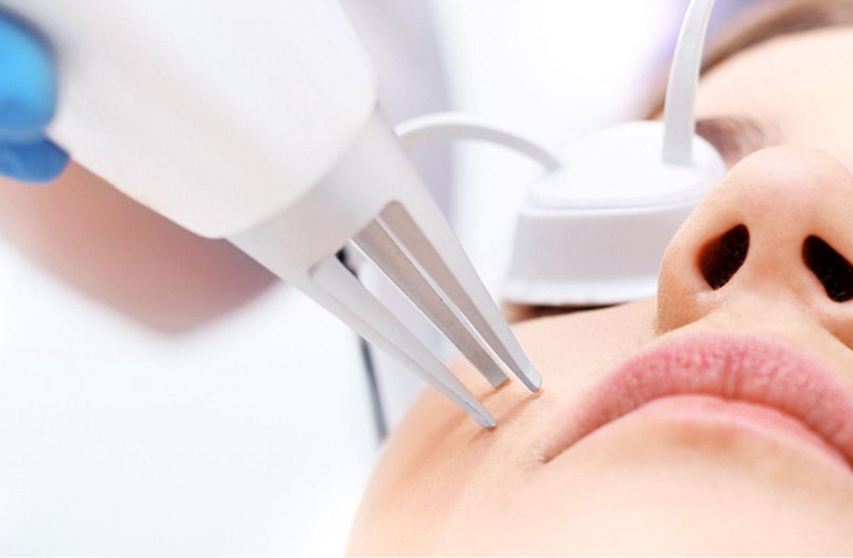 bioderm_0004__Laser-treatment_00_header-1200x786.jpg