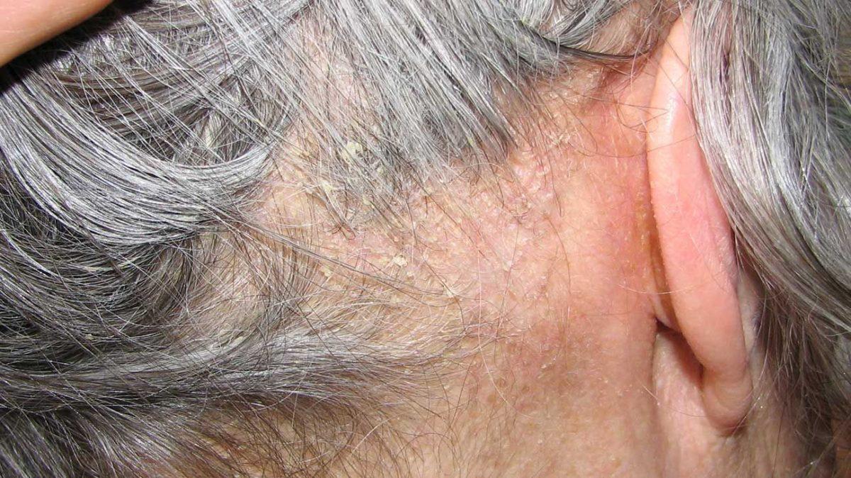 dermatita-seboreica-1200x674.jpg