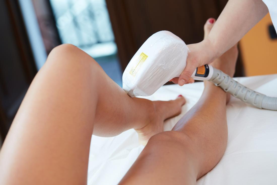 laser-hair-removal-on-legs.jpg