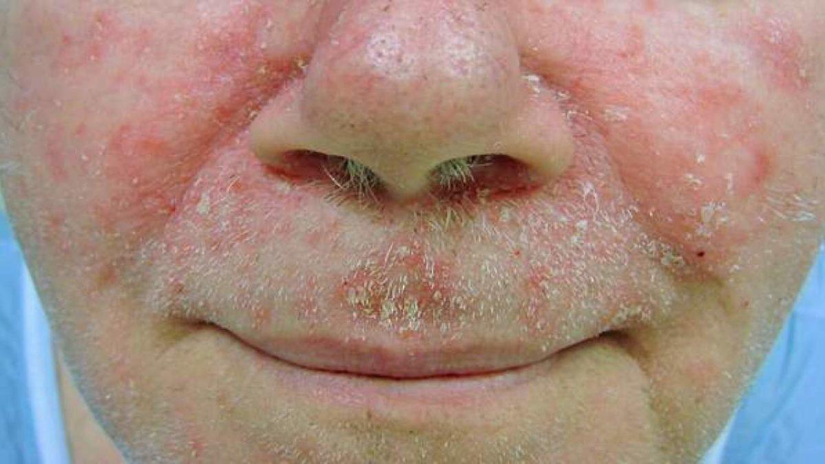 seborrhoeic-dermatitis-1200x675.jpg