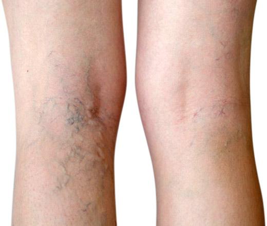 vein-therapy-varicose-vein-treatment-spider-vein-removal-dayton-oh.jpg