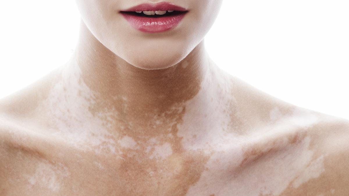 vitiligo-1200x675.jpg