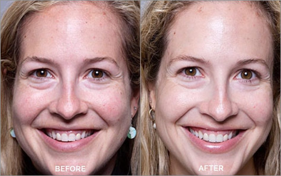 Collagen-Light-Before-After3.jpg